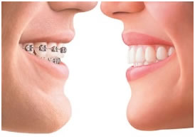 Invisable Braces Benefits